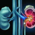 Kidney Stones: Treatment & Prevention